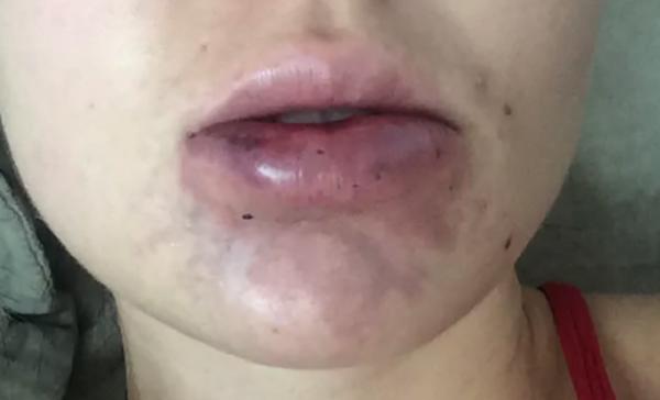 Покраснение рядом с губами