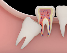 Последствия удаления зуба мудрости для человека