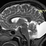 Ретроцеребеллярная киста головного мозга: что это, причины и последствия