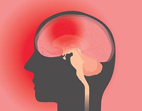 Последствия сотрясения мозга для организма человека