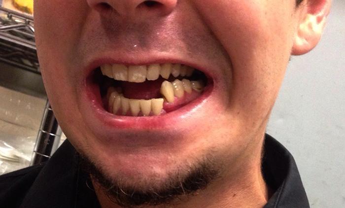 У мужчины перелом челюсти