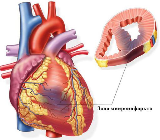 Зона микроинфаркта