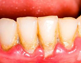 Зубной камень — причины появления и последствия