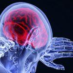 Причины и последствия кислородного голодания мозга