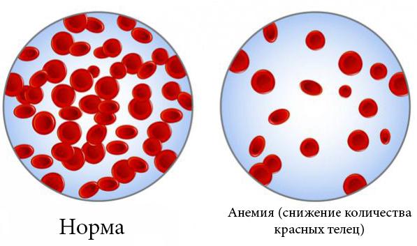 Норма и анемия