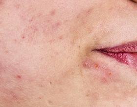 Повышенный тестостерон у женщин — причины и последствия
