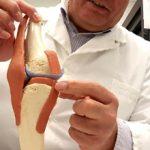 Последствия после удаления мениска коленного сустава