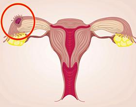 Возможные последствия внематочной беременности