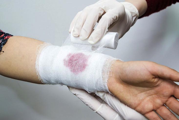 Врачебная помощь при кровотечении
