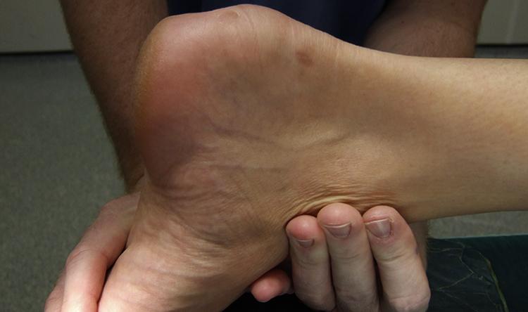 Болезнь Шинца пяточной кости