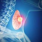 Рак щитовидной железы и его возможные последствия